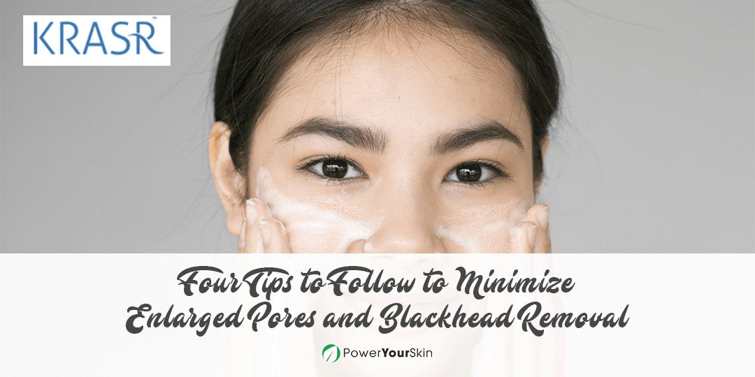 Minimize Enlarged Pores and Blackhead Removal